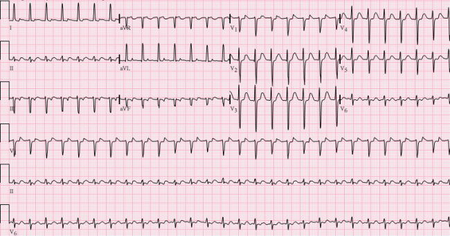 Patients with Severe Heart Failure and an abnormal EKG that looks like this: