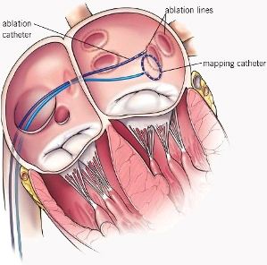Pulmonary vein ablation (also called pulmonary vein antrum isolation or PVAI), is a treatment for atrial fibrillation.