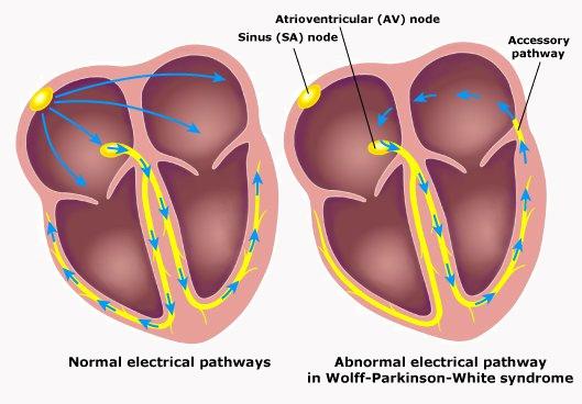 Atrioventricular (AV) Node